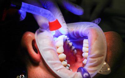 Zły sposób żywienia się to większe ubytki w jamie ustnej natomiast również ich zgubę