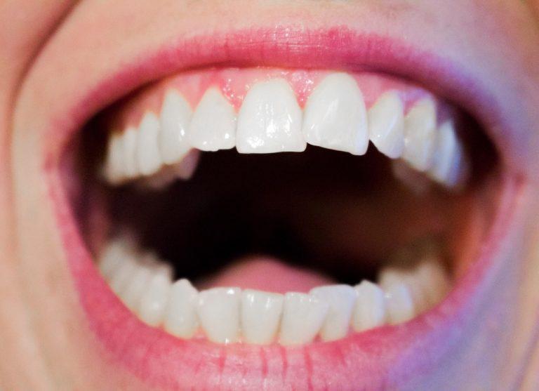 Aktualna technologia używana w salonach stomatologii estetycznej być może sprawić, że odzyskamy piękny uśmiech.